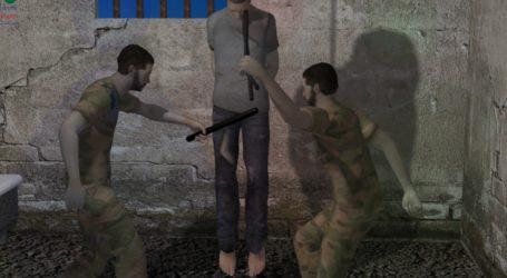 التعذيب بالشمعة حرقاً … قصة حقيقية من فظائع المعتقلات السورية